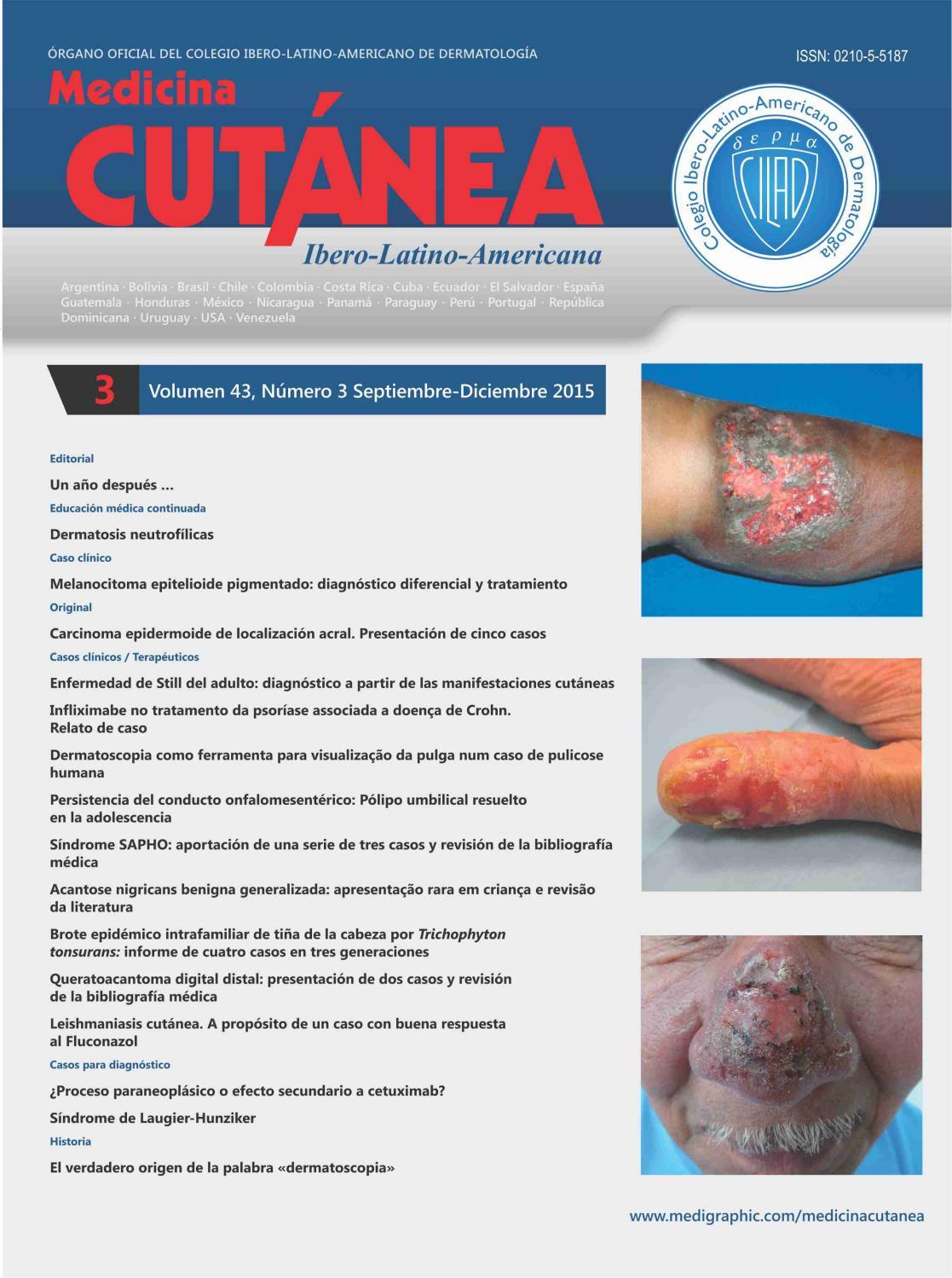 arteritis inducida por radiación después de la radiación de próstata