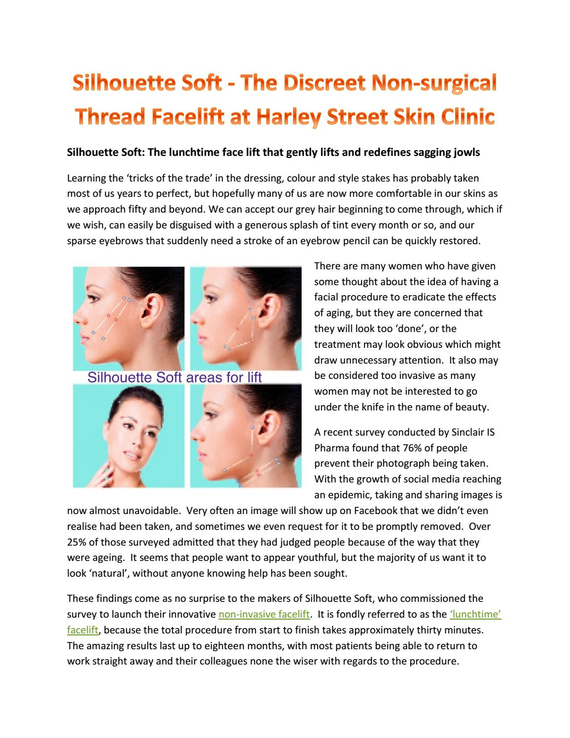 Silhouette soft the discreet non surgical thread facelift at