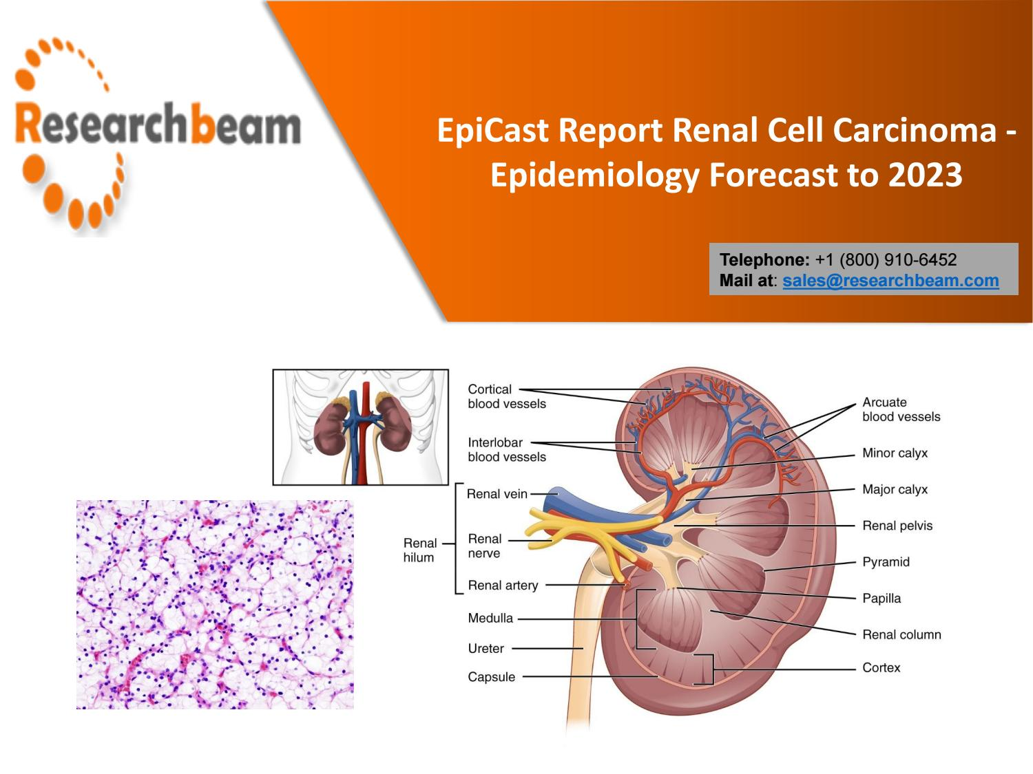 Why Is Kidney Cancer Increasing By Stiphenford Issuu