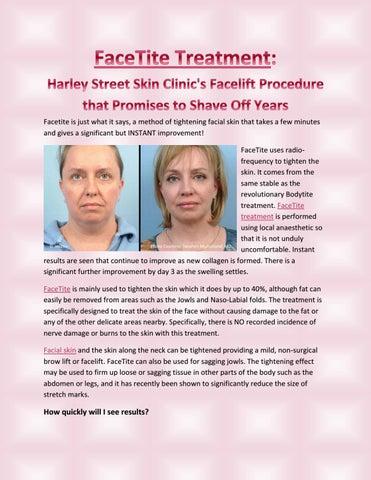 Facetite treatment harley street skin clinic's facelift