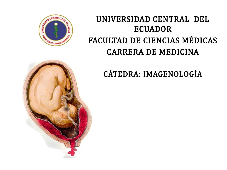 que tan grave es el desprendimiento de placenta