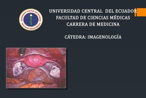 ovario con cuerpo amarillo hemorragico