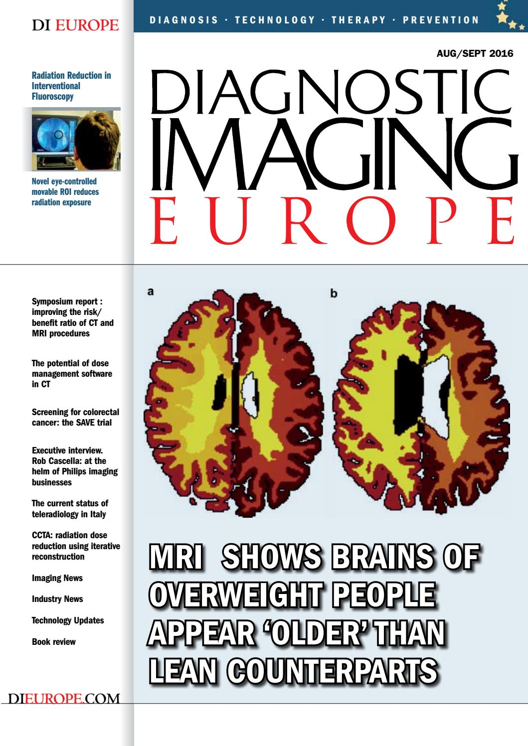 Dieurope Augsept 2016 By Diagnostic Imaging Europe Issuu My Intelligent Curve Tracer Page 1