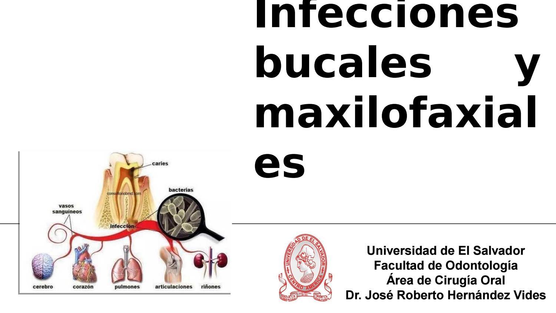 Infecciones odontogenicas by José Roberto Hernández Vides - issuu