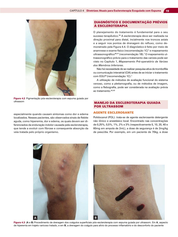 4.3 tratamento de 2 varizes