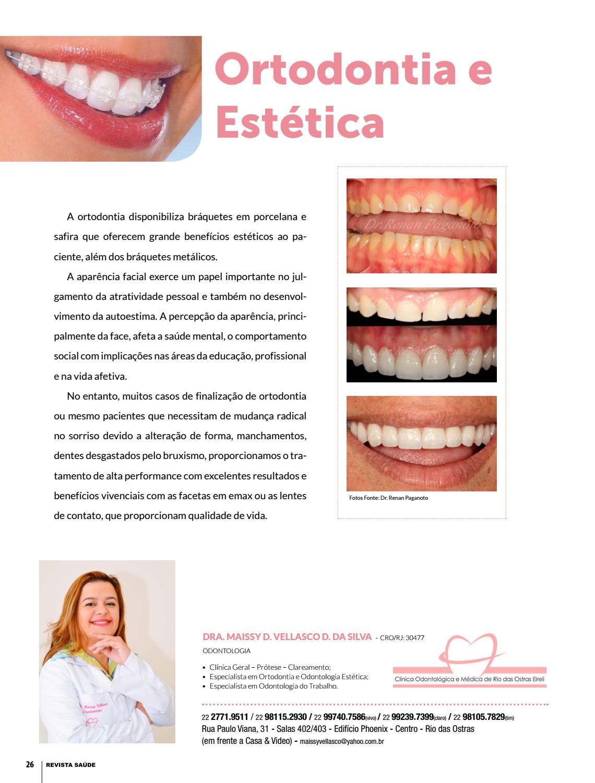 Tag Quanto Custa Lente De Contato Dental Yahoo