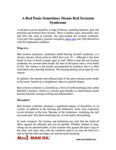 Durere și arsură în timpul urinării la bărbați: cauze și metode de luptă