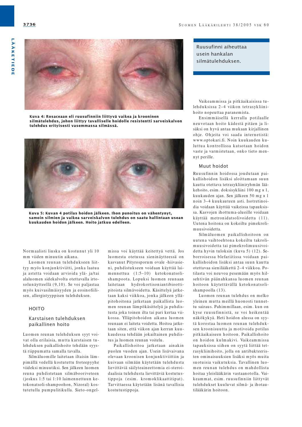 Krooninen Silmätulehdus