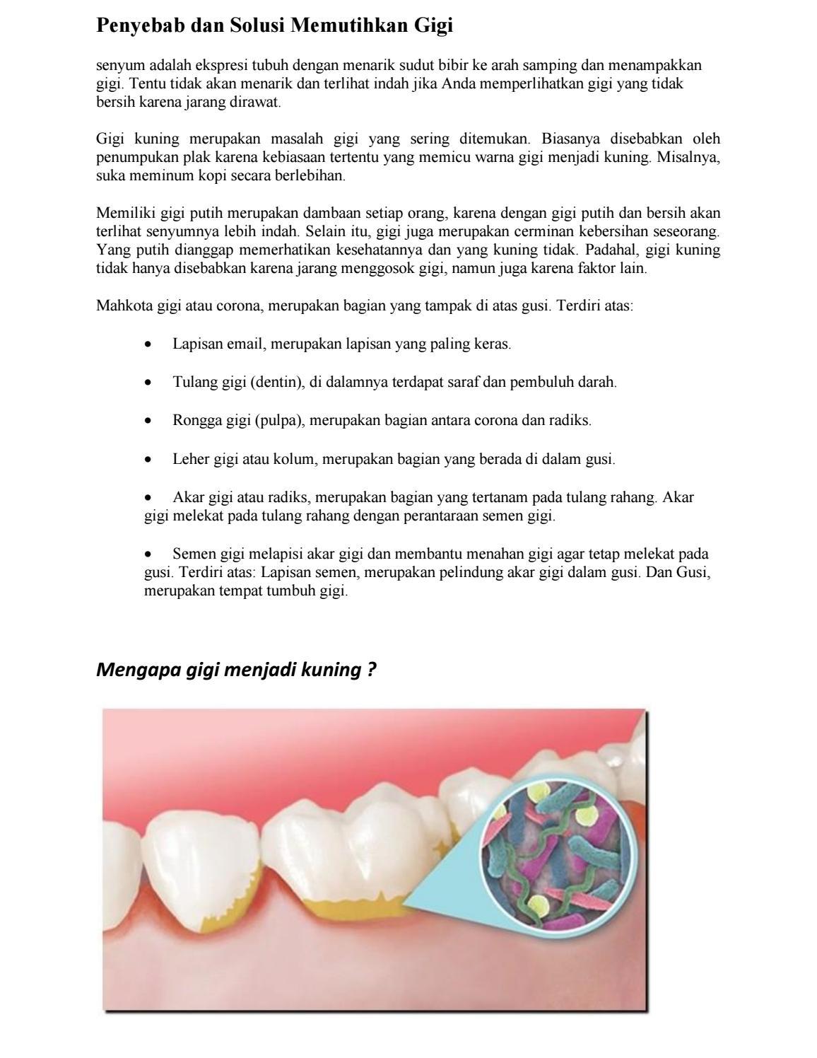 Penyebab Dan Solusi Memutihkan Gigi By C4ntik4 Issuu