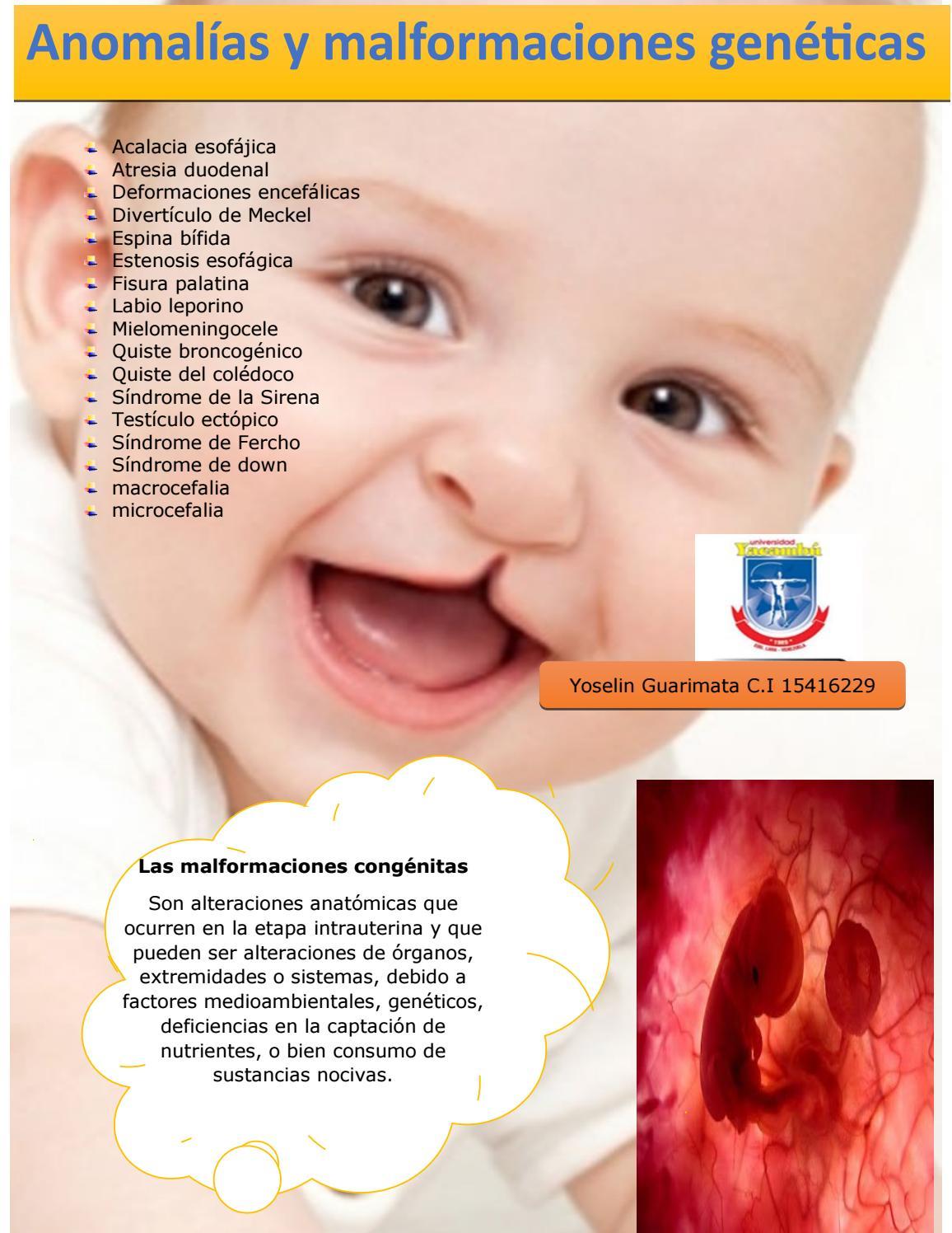 Anomalías y malformaciones genéticas by yoselin - issuu
