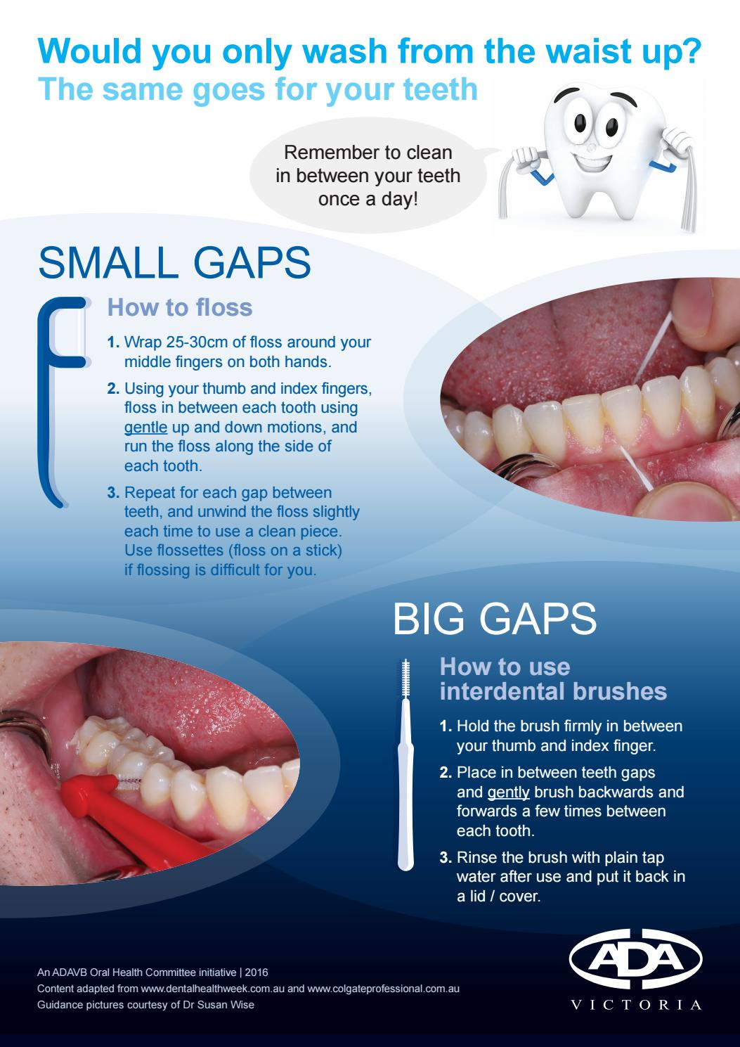 Oral through the small gap