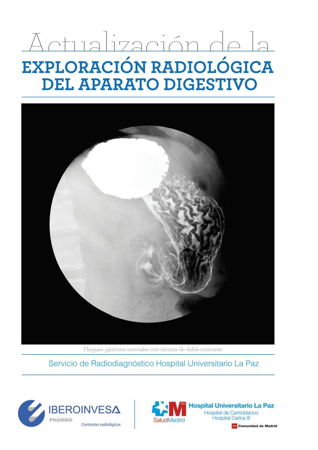 Ebook exploracion radiologica del aparato digestivo by froybas - issuu