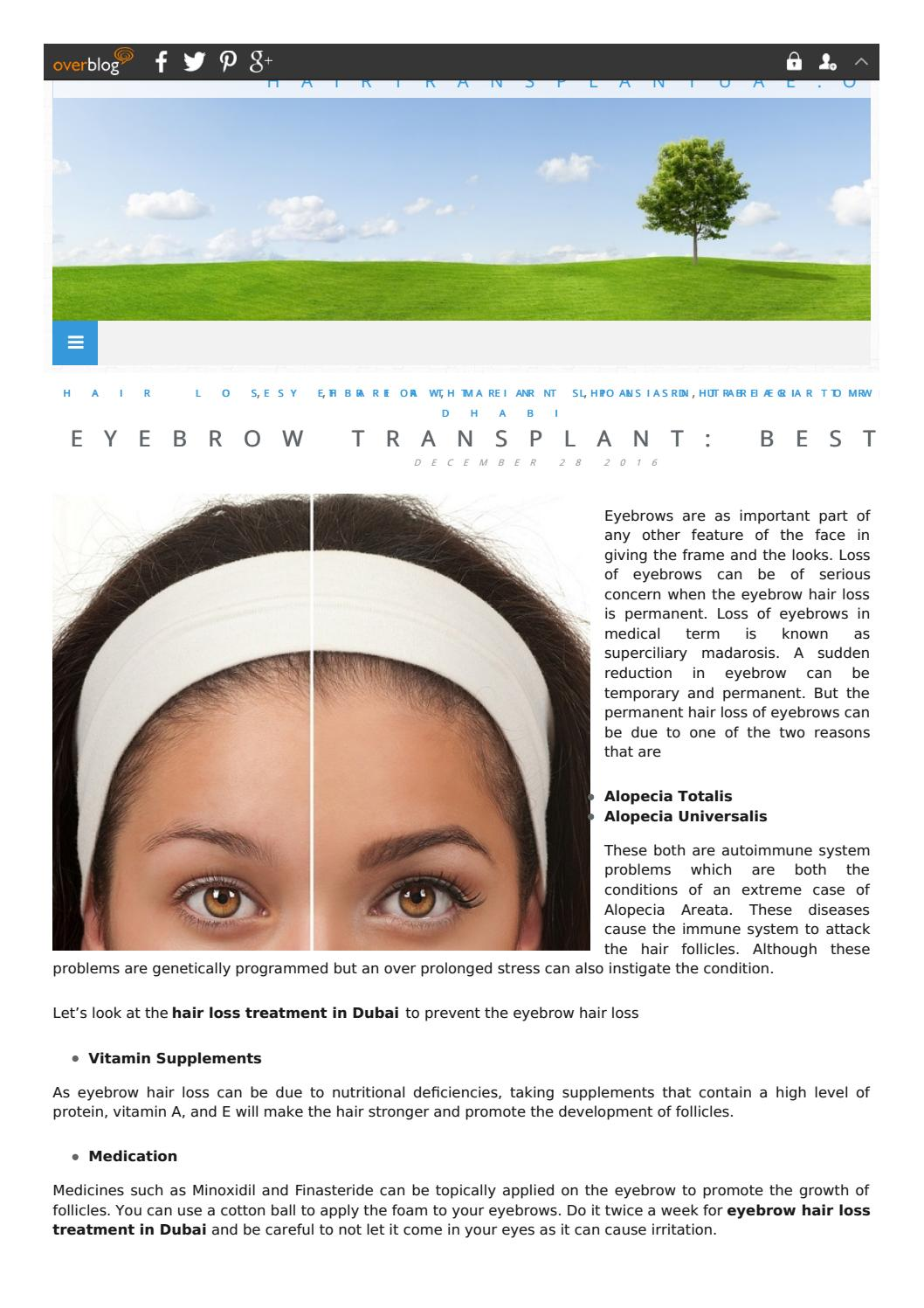 Eyebrows Hair Loss Treatment In Dubai By Sarah Macadams Issuu