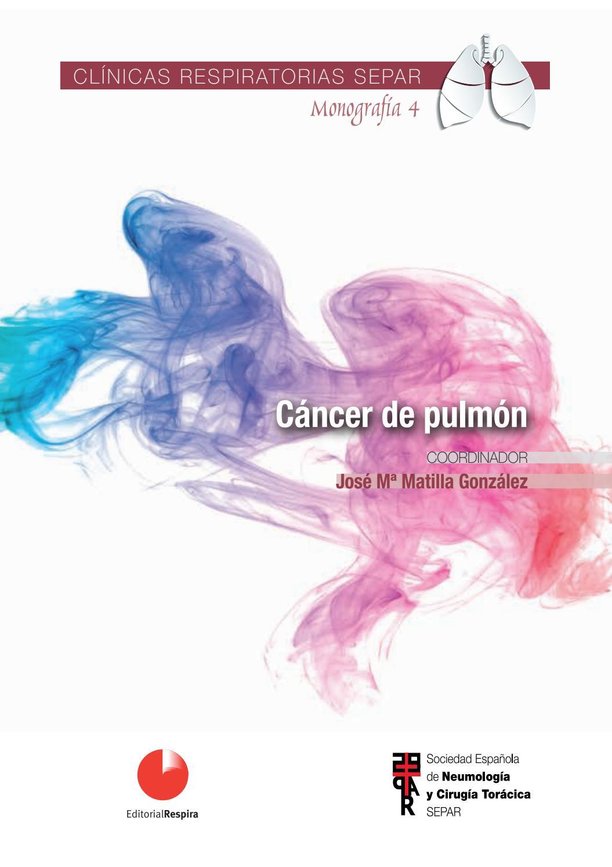 supervivencia del cáncer de próstata t4 n1