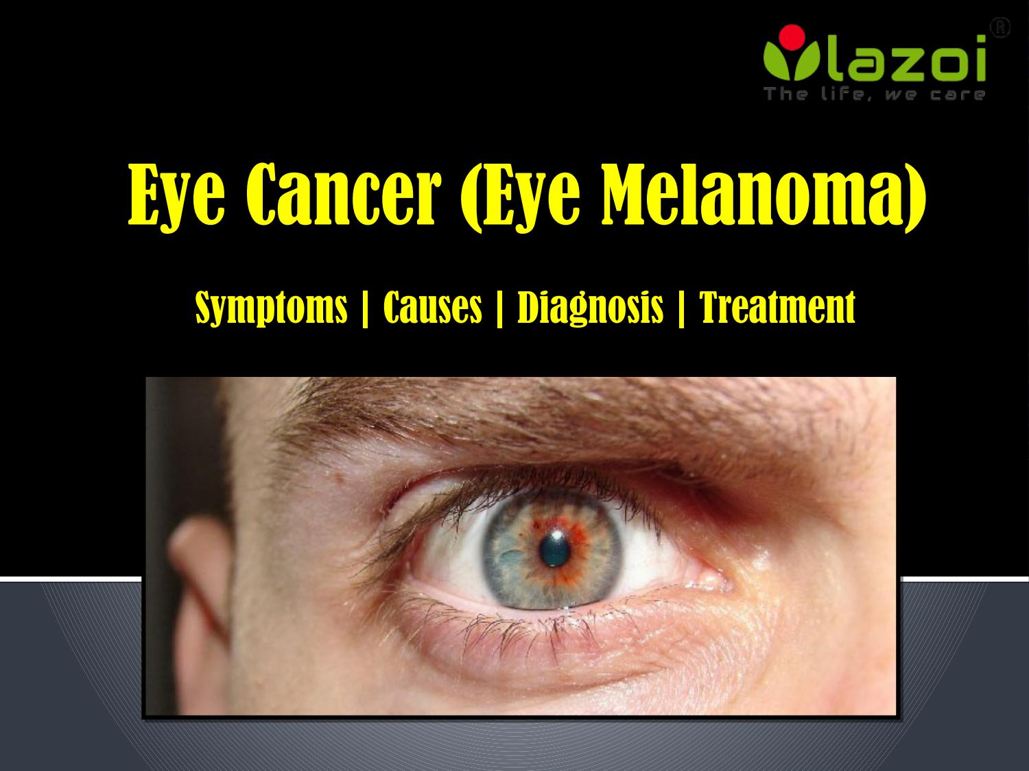 eye cancer signs and symptoms