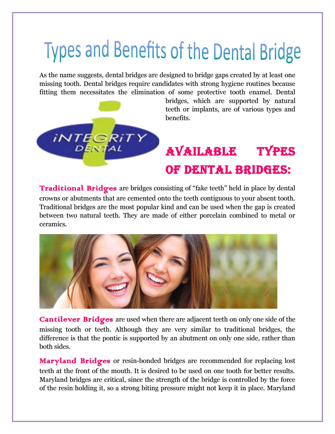 Types and benefits of the dental bridge by Integritydental - issuu