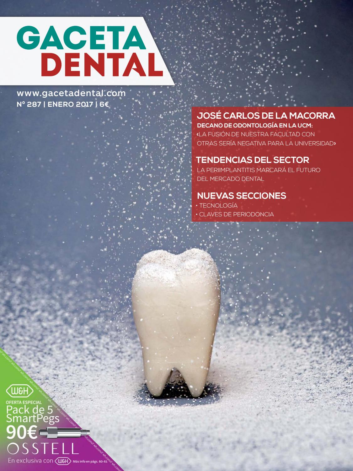 Gaceta Dental - 287 by Peldaño - issuu
