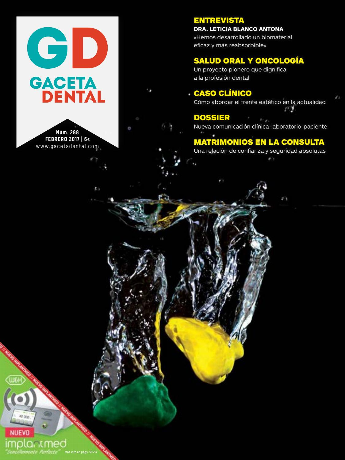 Gaceta Dental - 288 by Peldaño - issuu