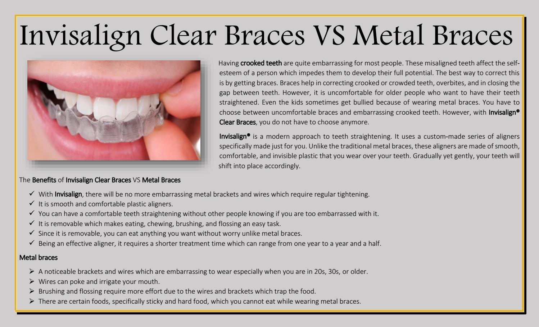 Invisalign Clear Braces VS Metal BracesInvisalign Clear Braces VS ...