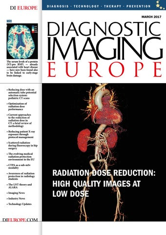 Dieurope march 2018 by diagnostic imaging europe issuu dieurope march 2017 fandeluxe Gallery