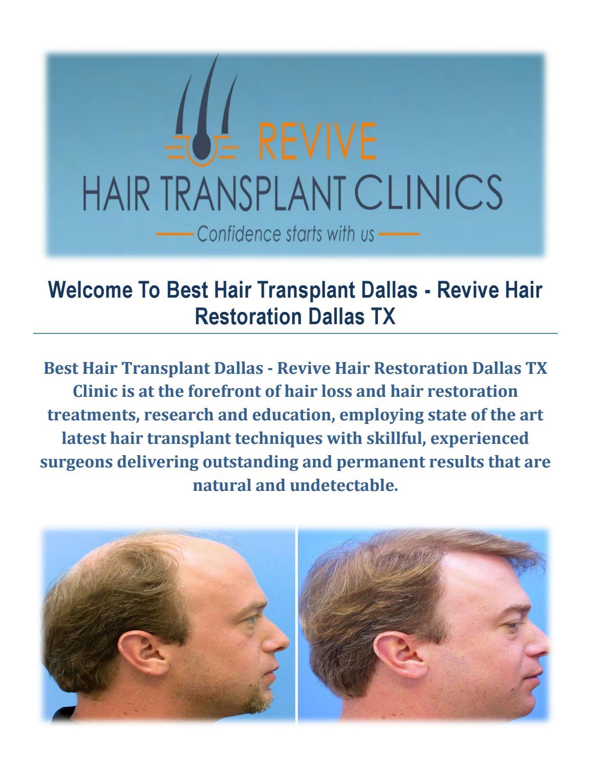 Best Hair Transplant Dallas - Revive Hair Restoration in