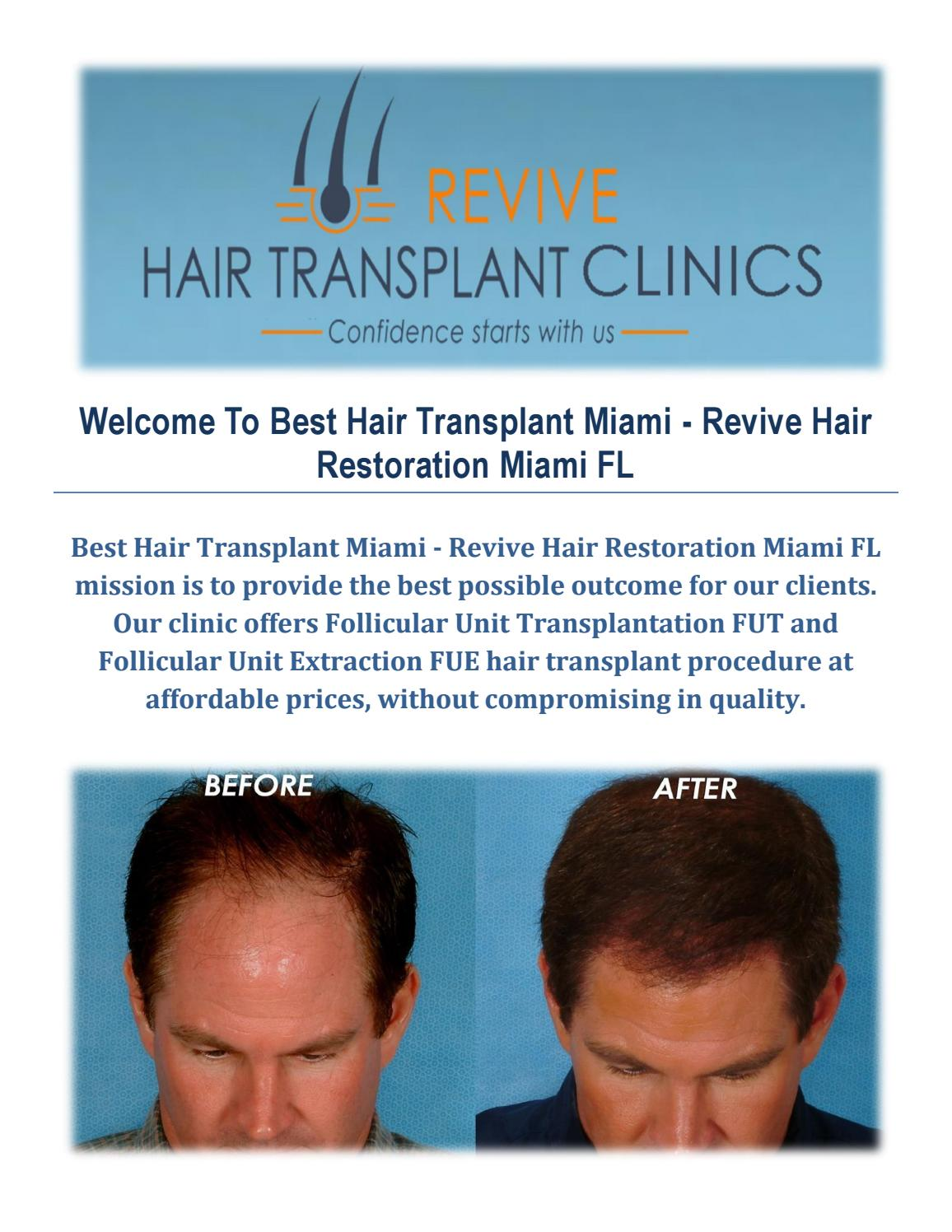 Best Hair Transplant in Miami FL - Revive Hair Restoration