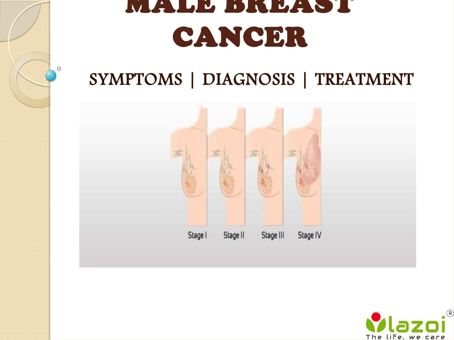 Male Breast Cancer Symptoms Diagnosis And Treatment By