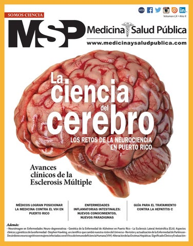 Video de cirugía de seudotumor cerebral