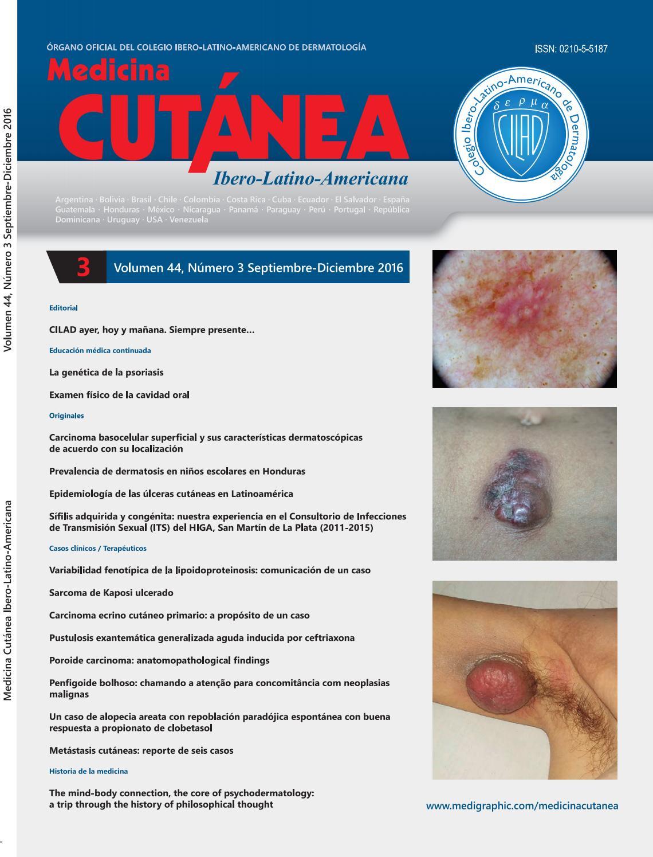 melanoma maligno auge síntomas de diabetes