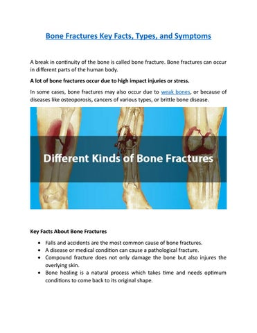 Bone fractures key facts, types, and symptoms by Harry Llioyd - issuu