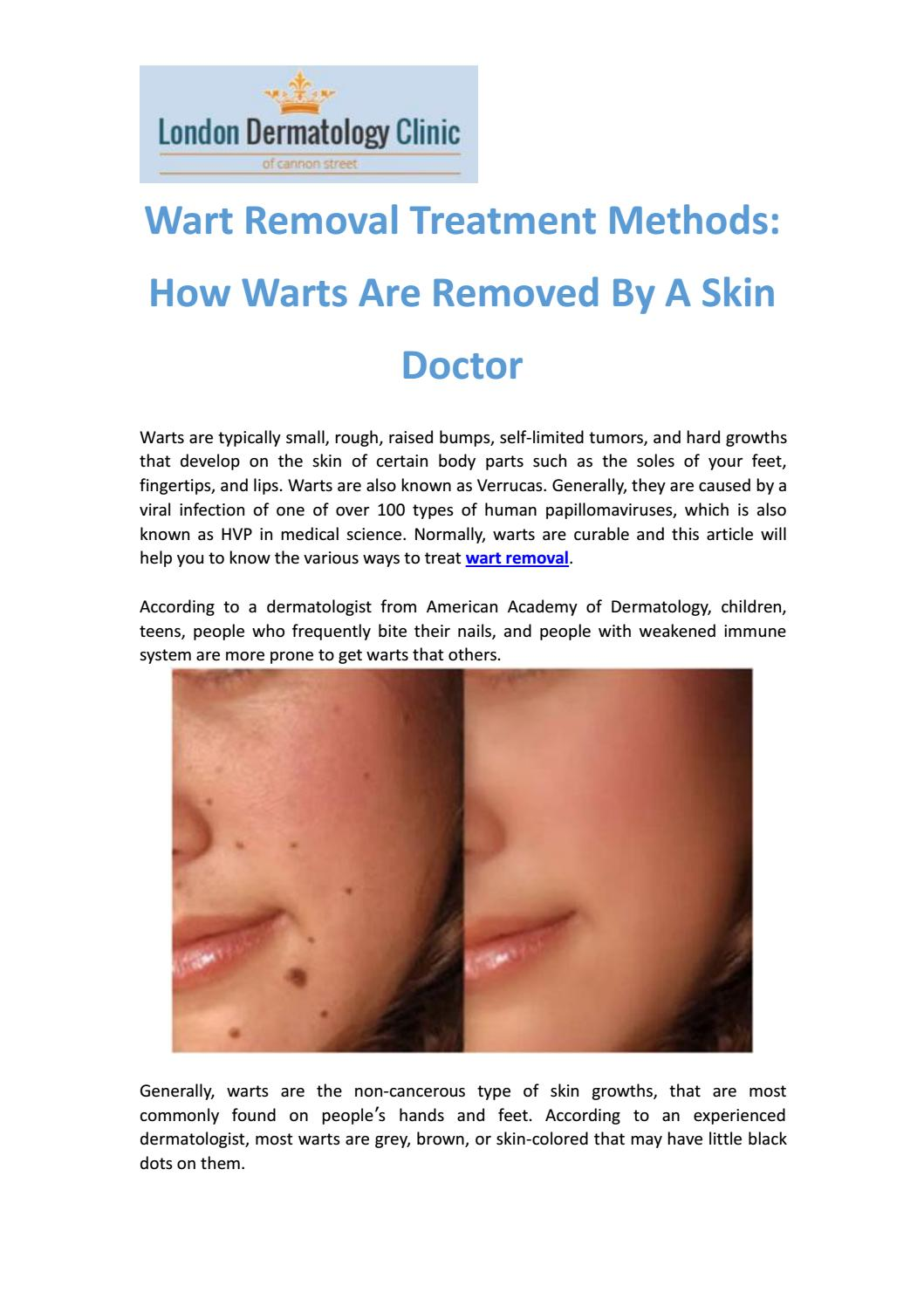 Wart treatment london, CALLUS AND WART REMOVAL FROM FEET BY MISS FOOT FIXER viermi ce scaun