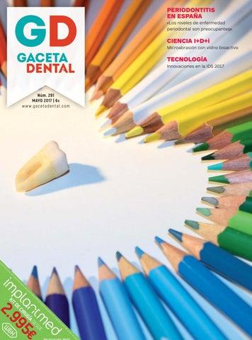 PERIODONTITIS EN ESPAÑA «Los niveles de enfermedad periodontal son  preocupantes» 57c773956a