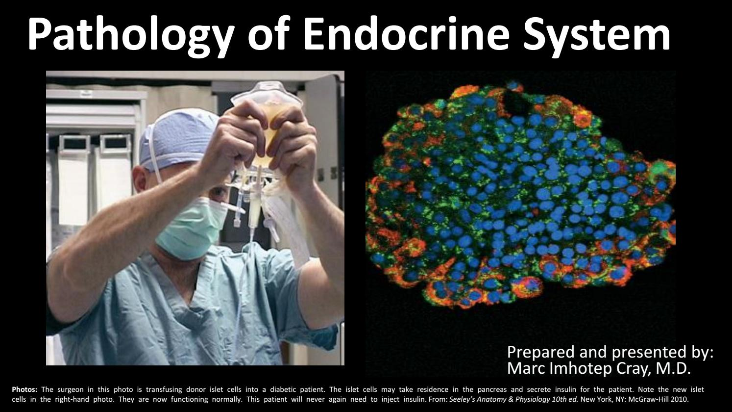 Endocrine System Pathology_ Ppt Lecture Series (5 in 1) by Marc ...