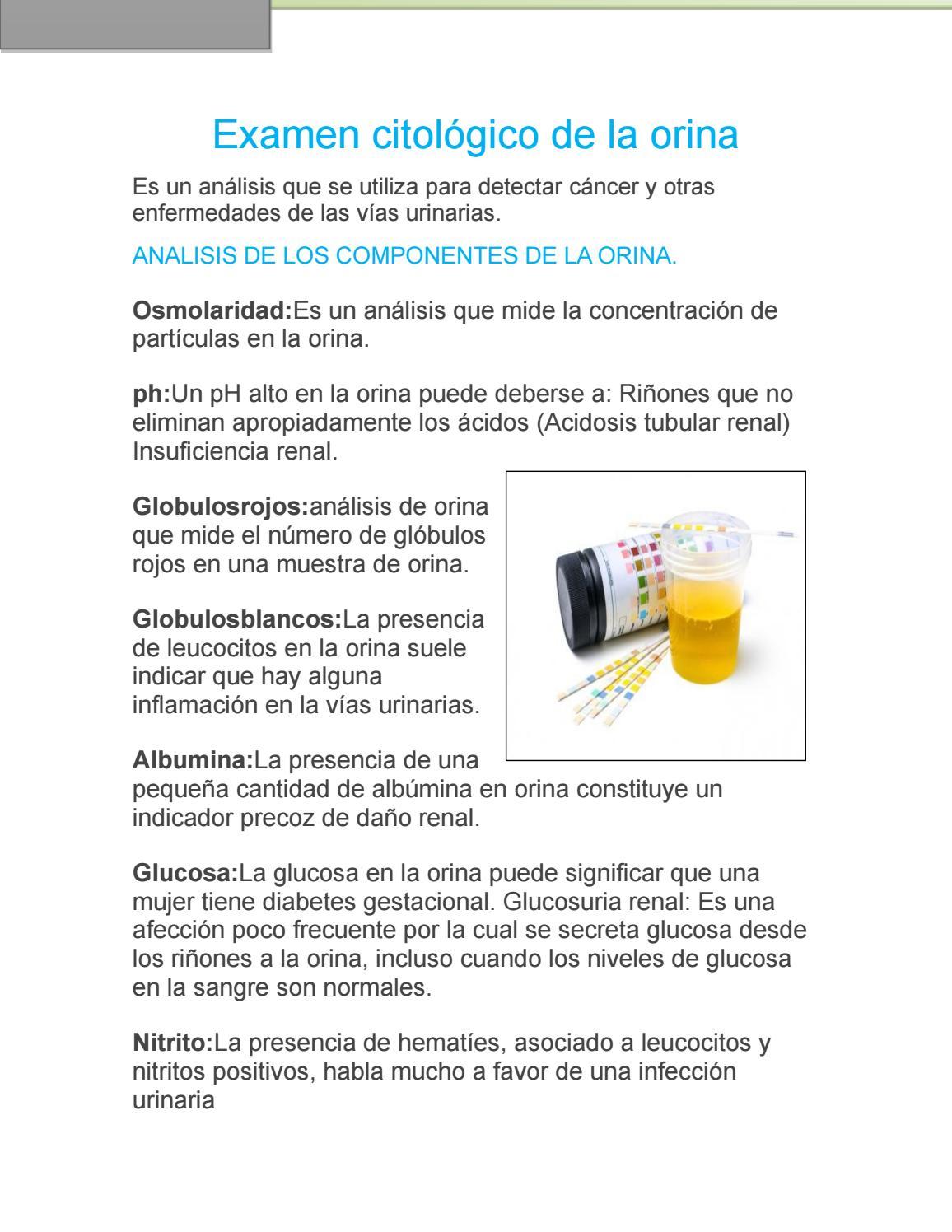 albúmina en orina diabetes