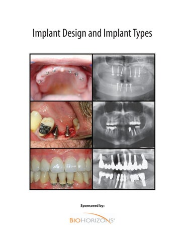 relación bidireccional entre diabetes mellitus y enfermedad periodontal estado de la evidencia