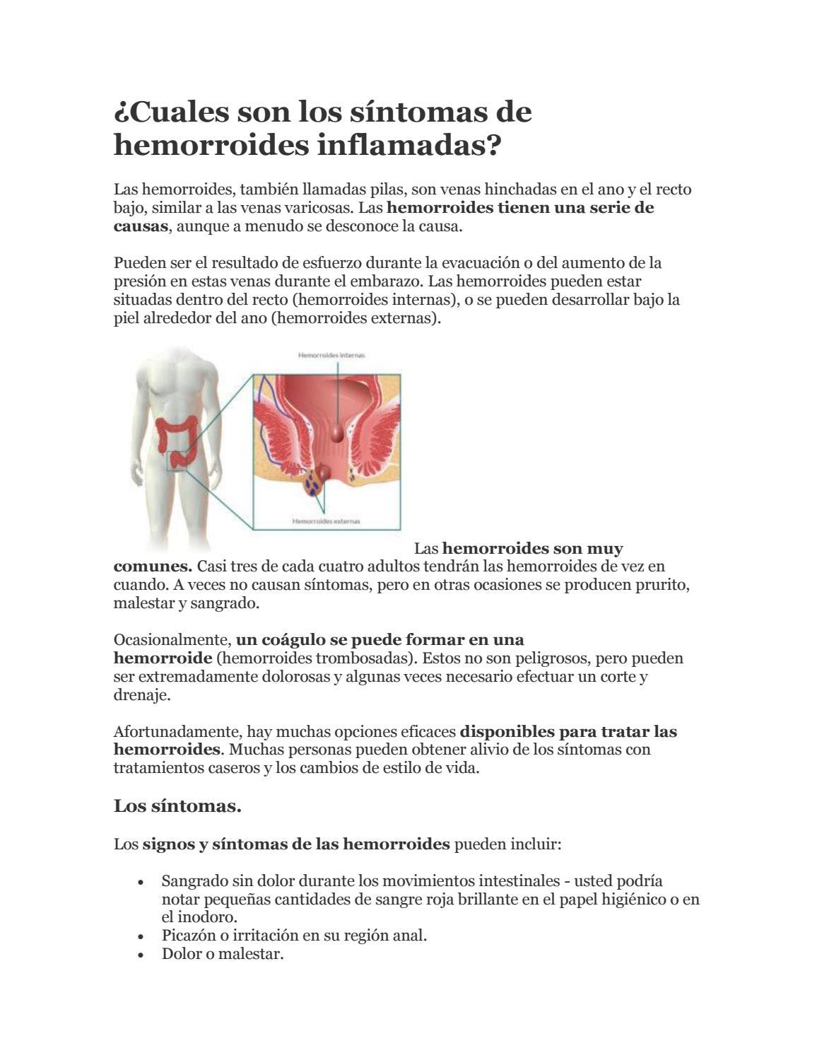 hemorroides externas prurito