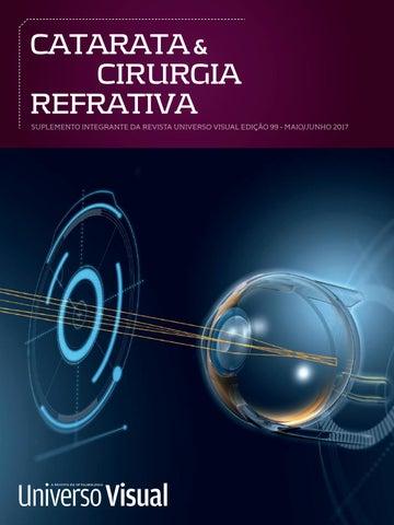 d13e7e9b7 CATARATA & CIRURGIA REFRATIVA SUPLEMENTO INTEGRANTE DA REVISTA UNIVERSO  VISUAL EDIÇÃO 99 - MAIO/JUNHO 2017