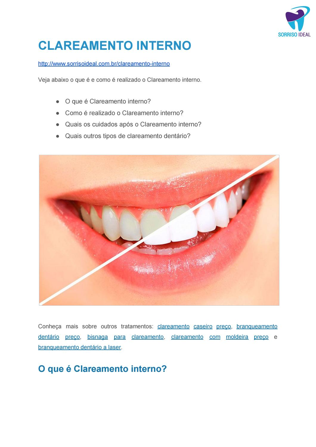 Clareamento Interno By Sorriso Ideal Issuu