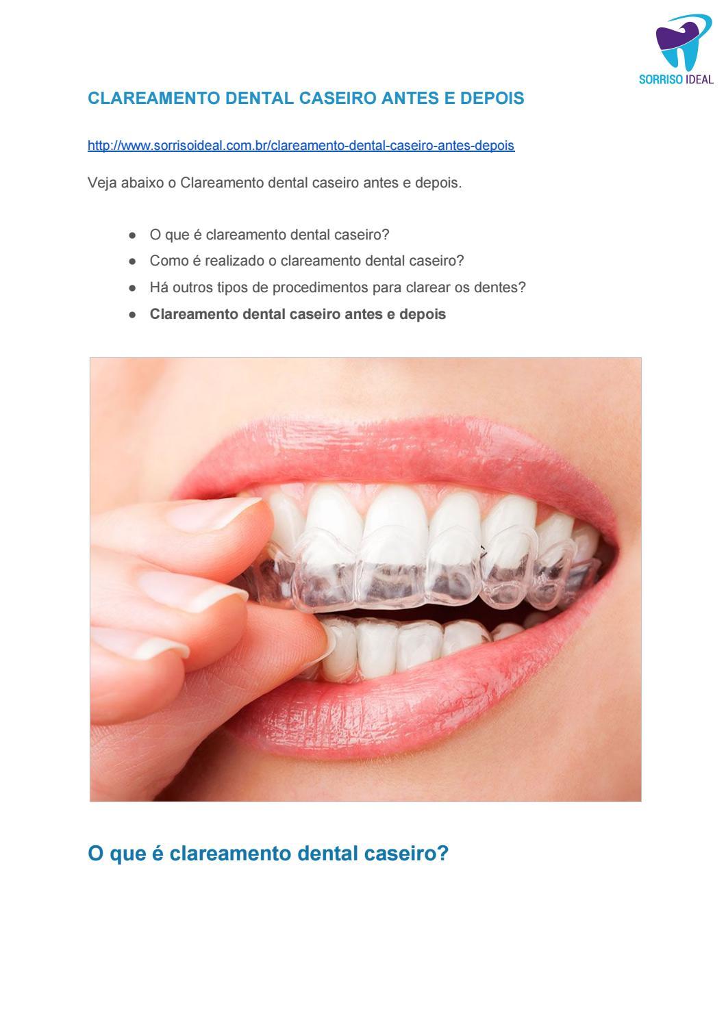 Clareamento Dental Caseiro Antes E Depois By Sorriso Ideal Issuu