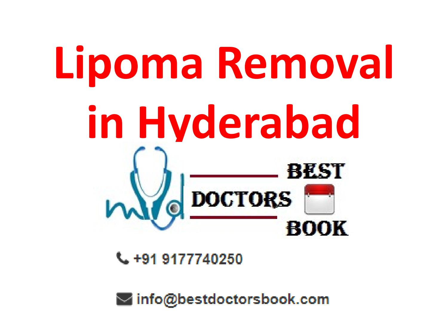 Lipoma Removal Cost in Hyderabad | Lipoma Doctor in Hyderabad by