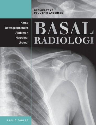 planocellulært karcinom lunge