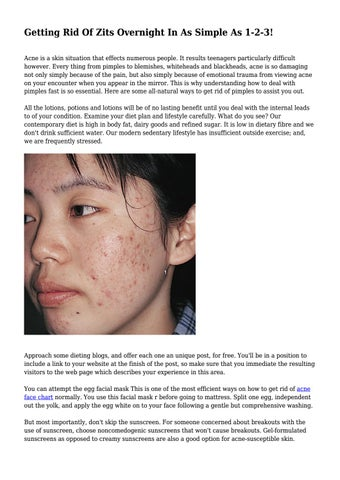 best way to get rid of zits overnight