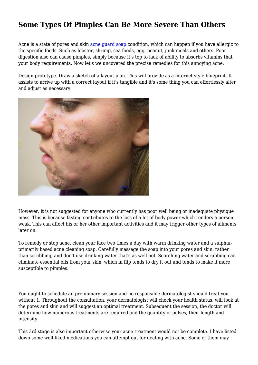 some types of pimples can be more severe than others by