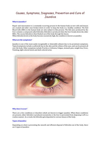 Causes Symptoms Diagnoses Prevention And Cure Of Jaundice By