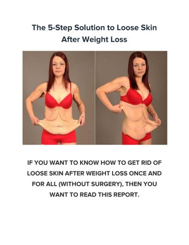 The 5 Step Solution To Loose Skin After Weight Loss By Extreme