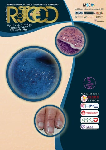 sampon dermatita seboreica scalp reduction