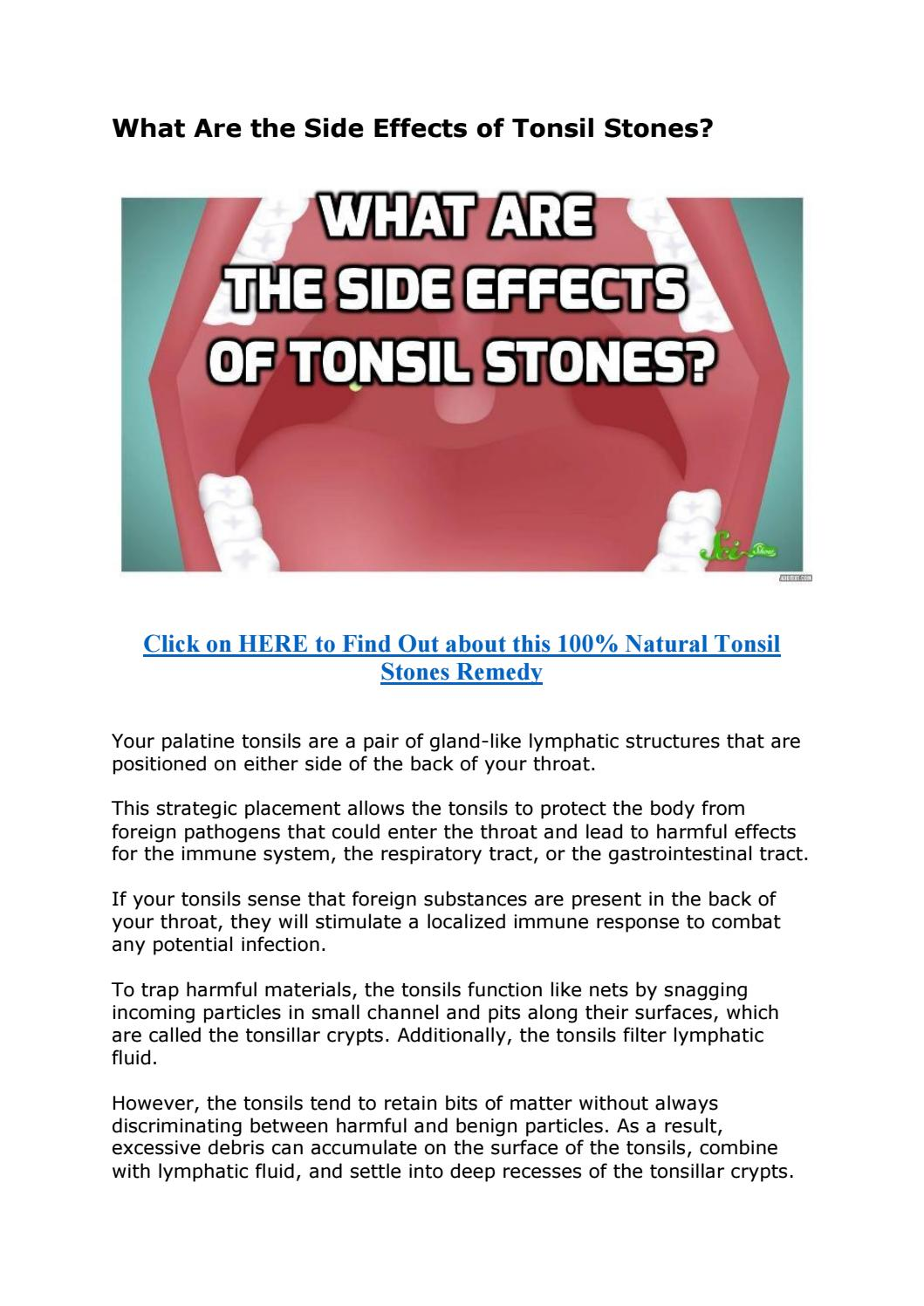 What Are The Side Effects Of Tonsil Stones By Anti Aging Beauty