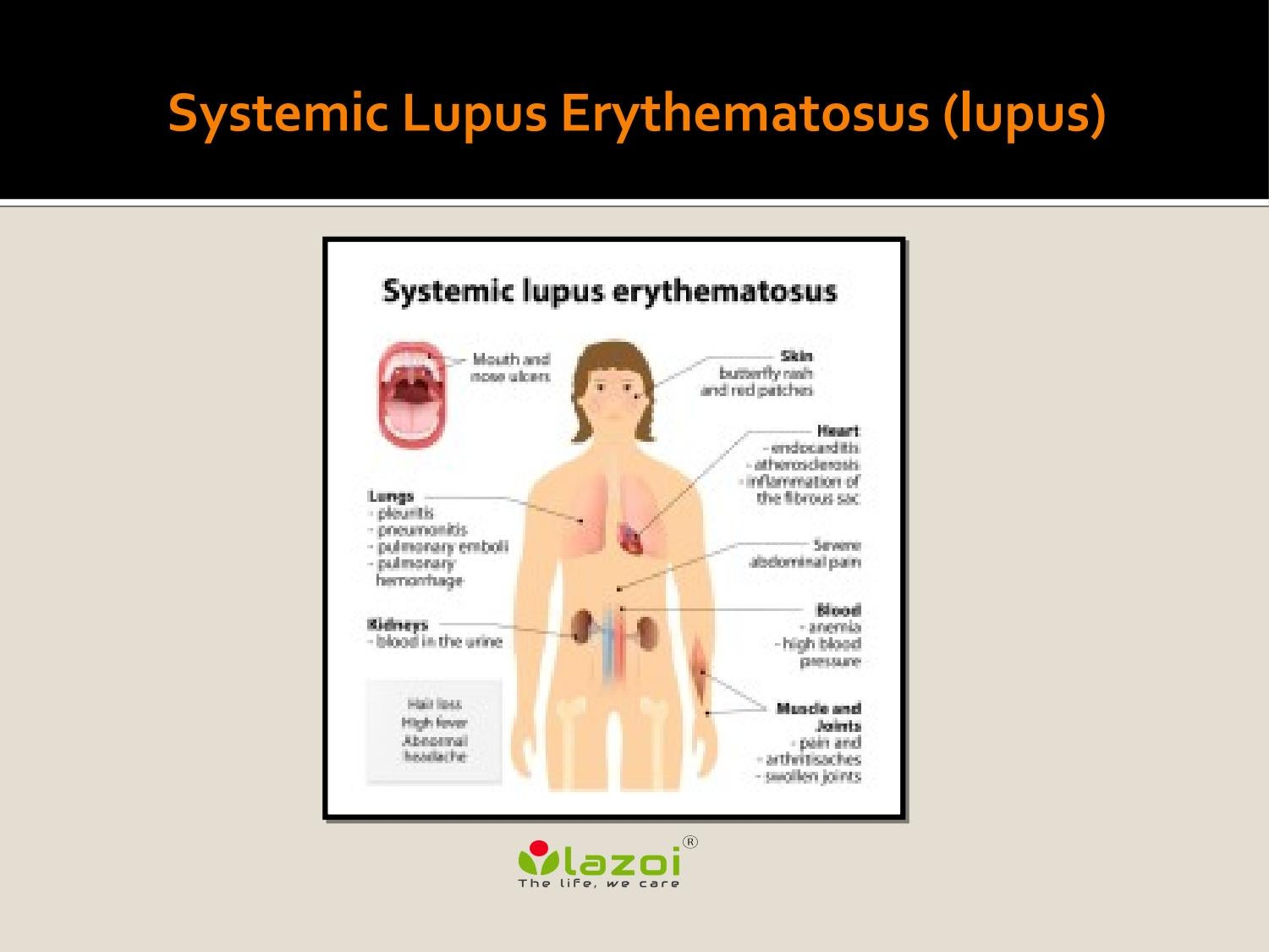 conclusion on systemic lupus erythematosus Monoclonal antibodies for systemic lupus erythematosus (sle) †  some studies, no firm conclusion on the risk-benefit profile of these mabs in patients with.