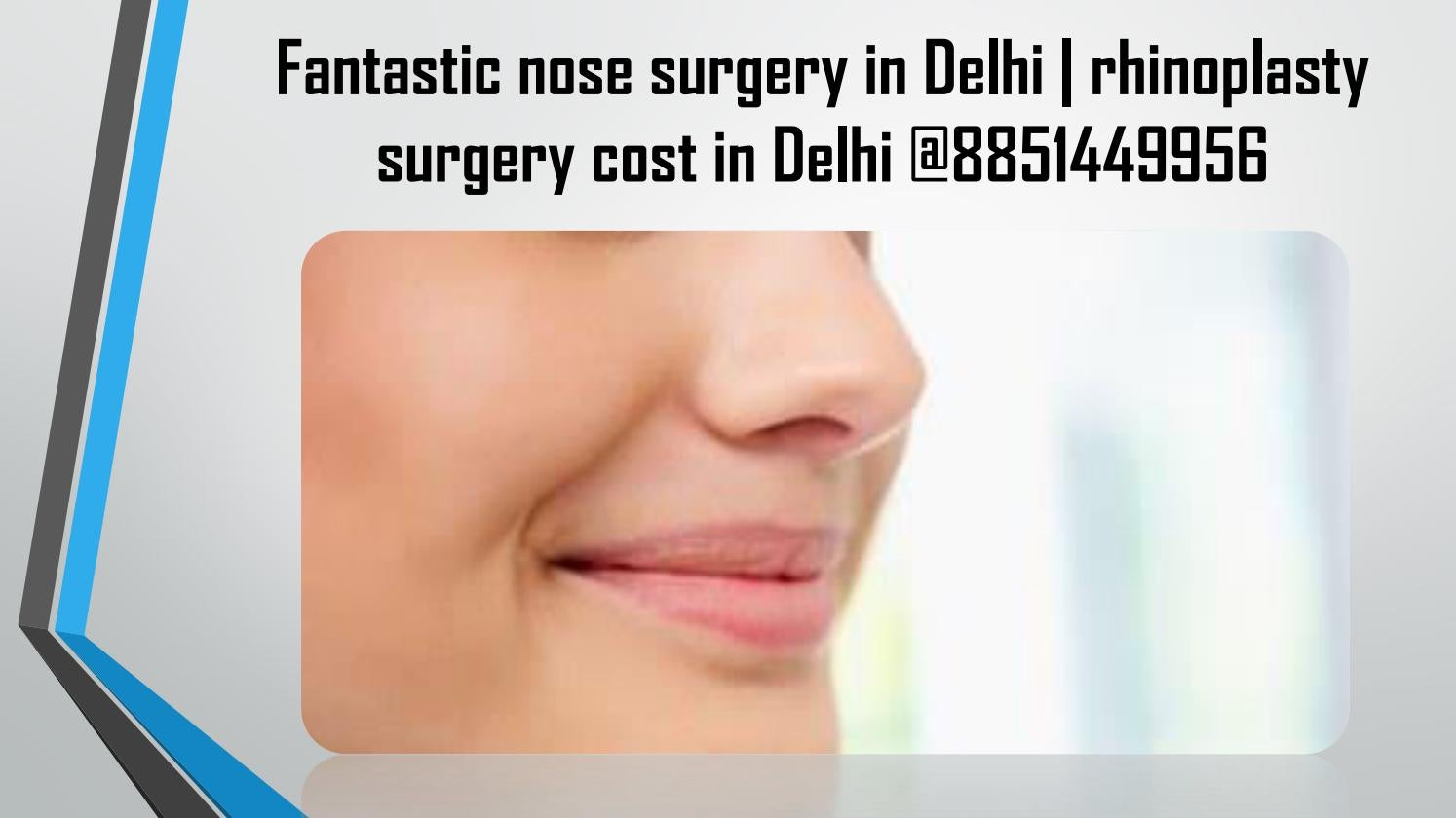 Fantastic Nose Surgery In Delhi Rhinoplasty Surgery Cost In Delhi 8851449956 By Cosmetic Surgery India Issuu