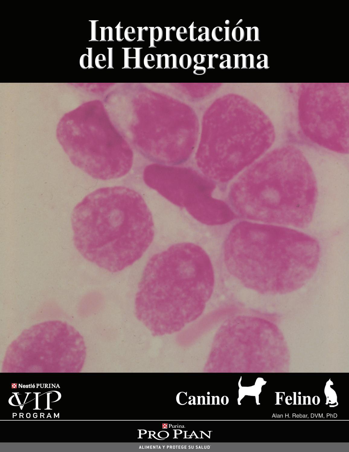 imagenes de linfocitos reactivos